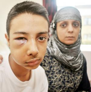 Schoolboy suffers broken cheekbones in attack at Burnley school