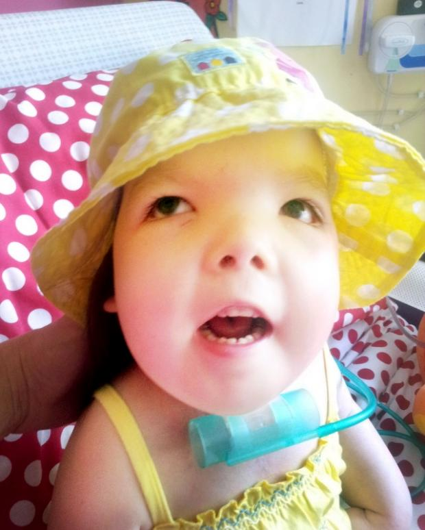 Burnley and Pendle Citizen: Abigail Rawson suffered from Jacobsen Syndrome