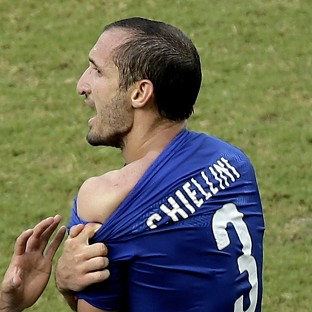 Italy's Giorgio Chiellini displays his shoulder showing apparent teeth marks after colliding with the mouth of Uruguay's Luis Suarez (AP)