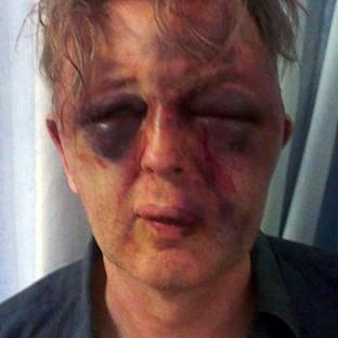 The unnamed victim of the burglary attack in Wimbledon was left with life-changing injuries (Metropolitan Police/PA)